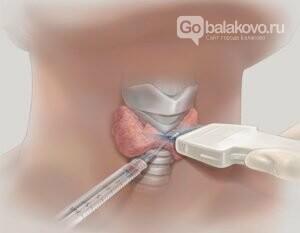 Дирижер всего организма: зачем проверять щитовидную железу?, фото-5
