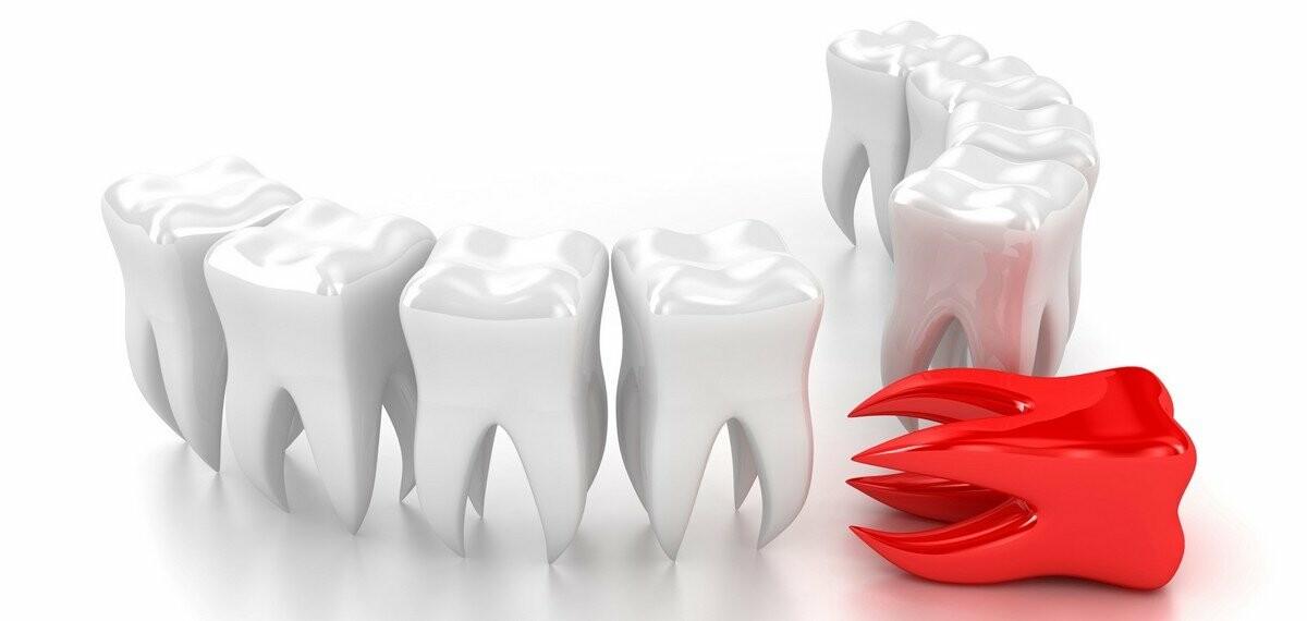 протезирование зубов в Балаково